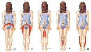 dor-pernas1