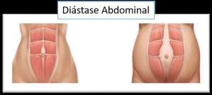 diastase-abdominal-570x257